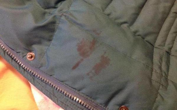 Краска на куртке: чем и как удалять пятна?